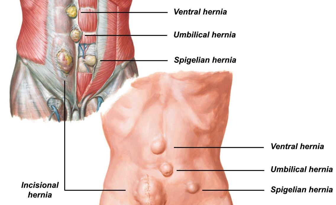 Inguinal Hernia Operation Kirurgija Bitenc